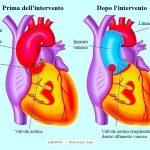 valvola-aortica-intervento-innesto