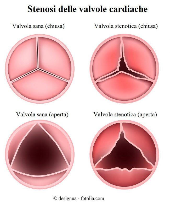 valvola-cuore-stenotica-aperta-chiusa