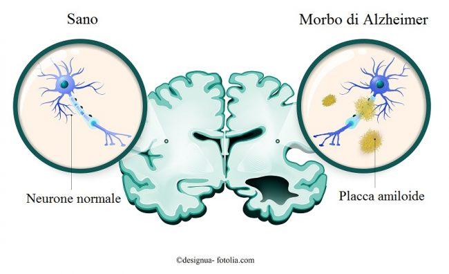 Alzheimer-neurone