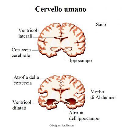 Cervello-Alzheimer