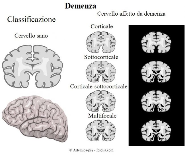 Demenza-corticale-sottocorticale