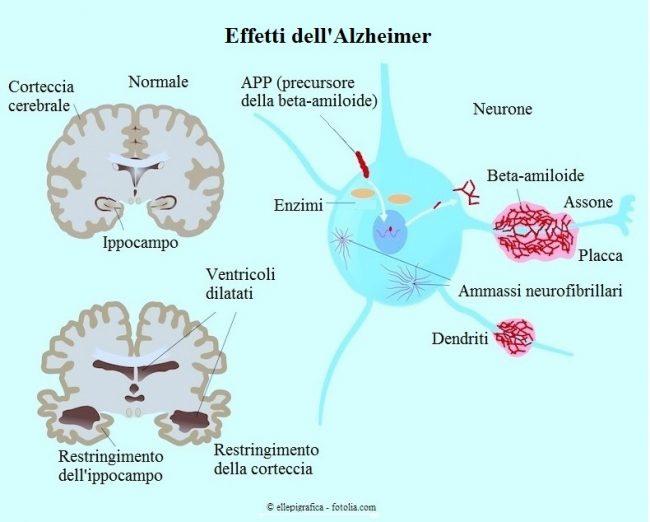 Effetti-Alzheimer