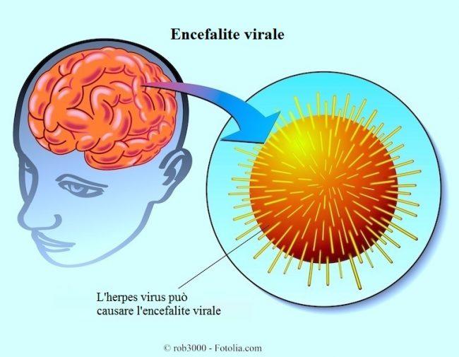 encefalite-virale