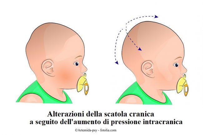 Alterazioni-pressione-intracranica