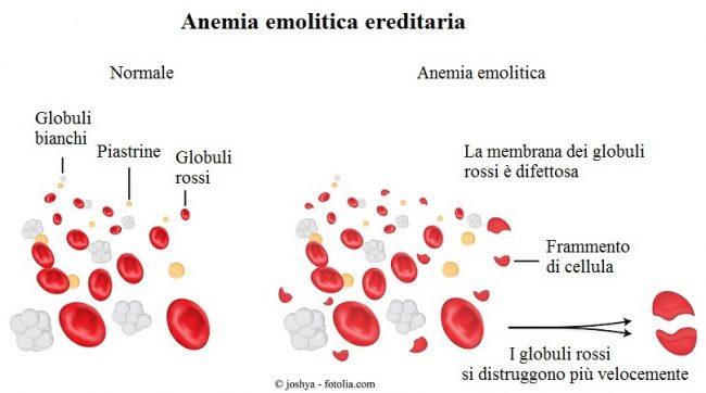 Anemia-emolitica