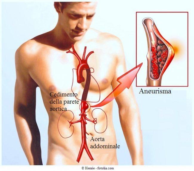 Aneurisma-dellaorta-addominale-o-toracica-intervento-chirurgico