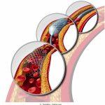 Angioplastica-palloncino-stent-coronarie