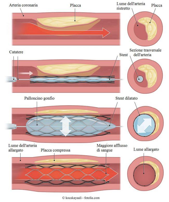 Angioplastica-stent-palloncino