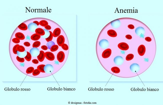 Classificazione-dell-anemia
