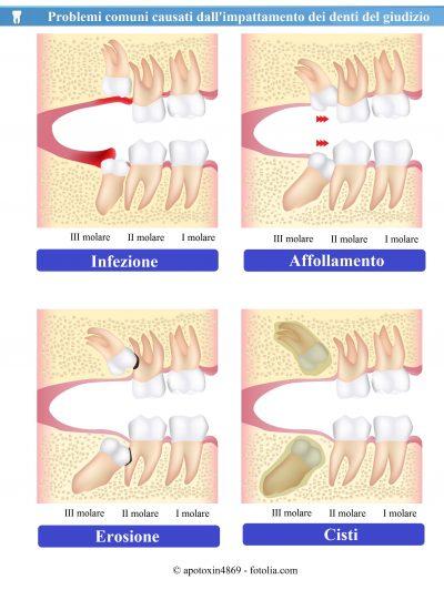 Denti-giudizio-infezione-erosione