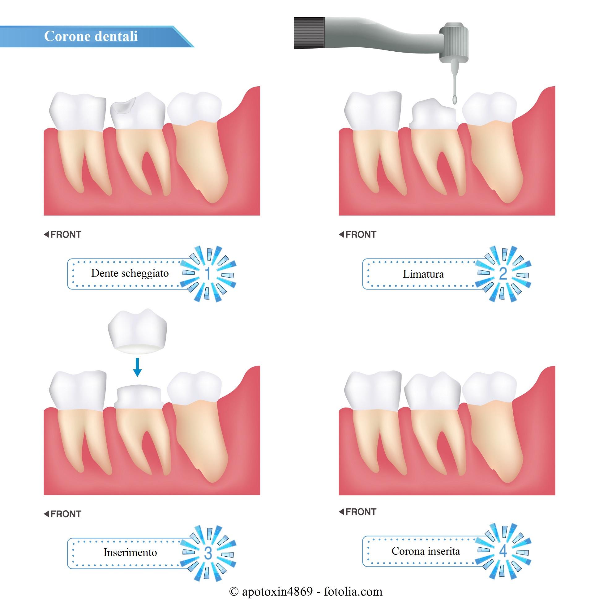 Denti-impianto-corona