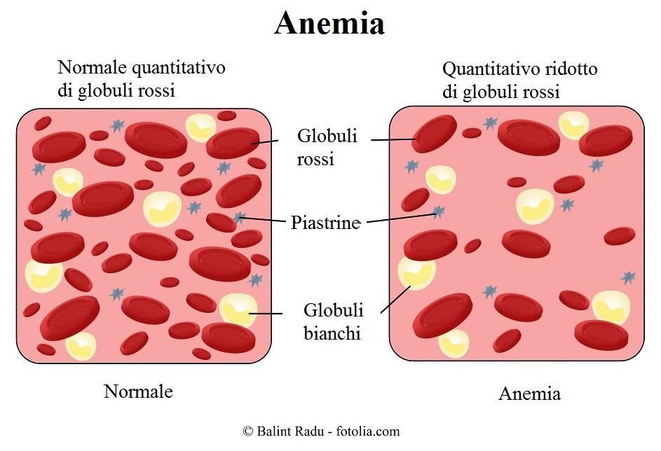 dieta per le persone con anemia