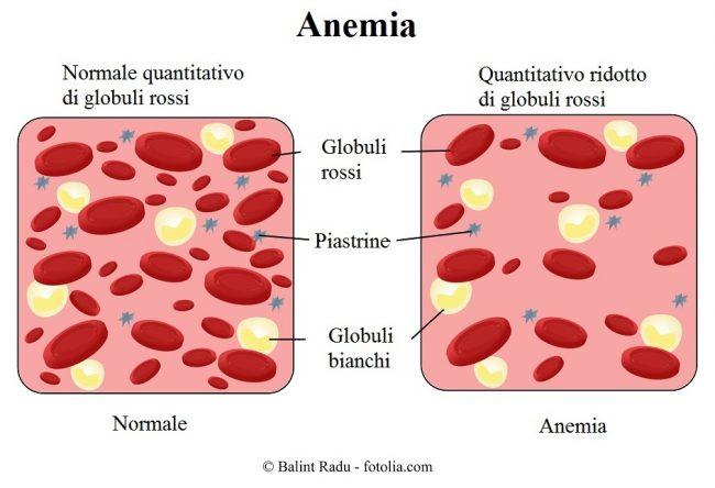Terapia-dell-anemia-sideropenica
