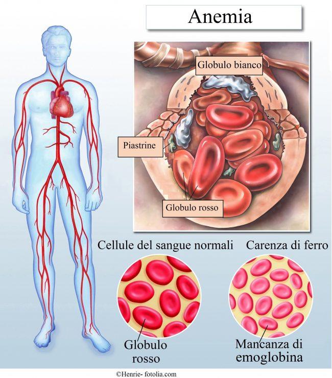 anemia-carenza-ferro