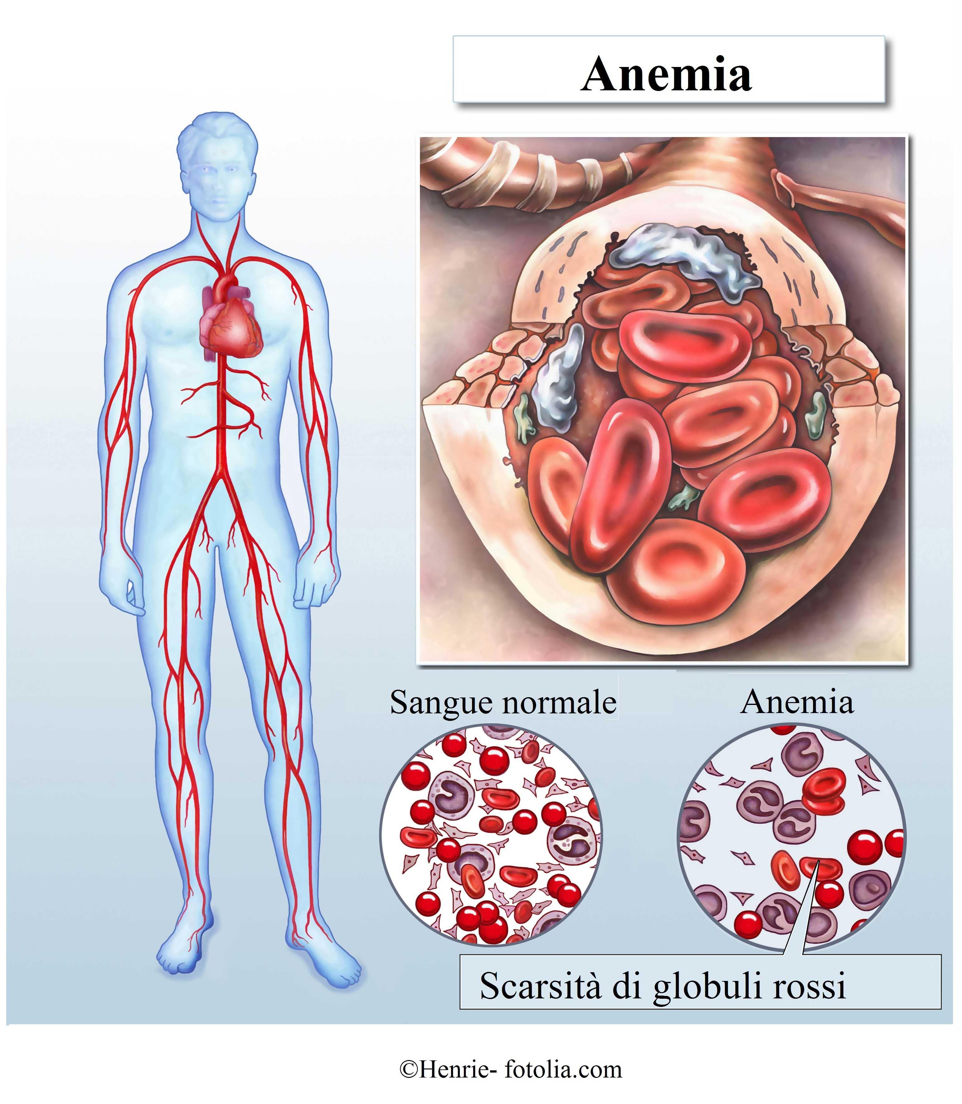 anemia-globuli-rossi