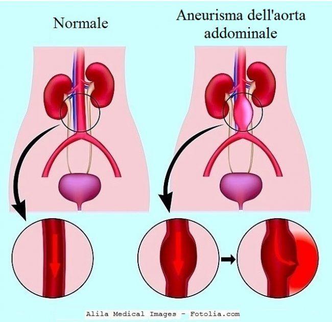 aneurisma-aorta-addominale