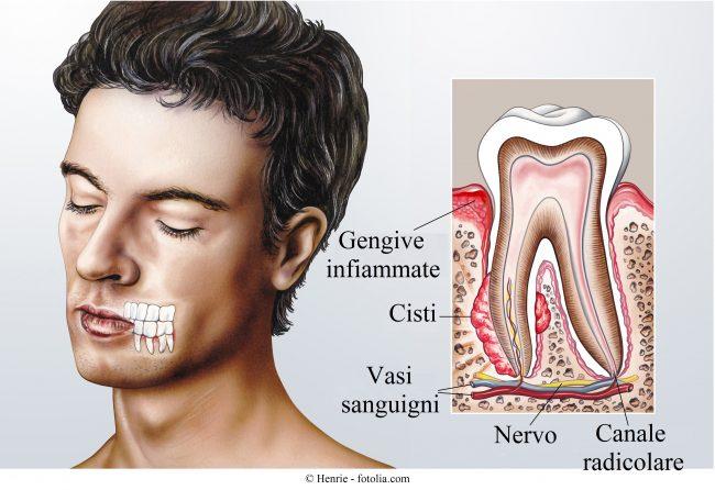 cisti-denti