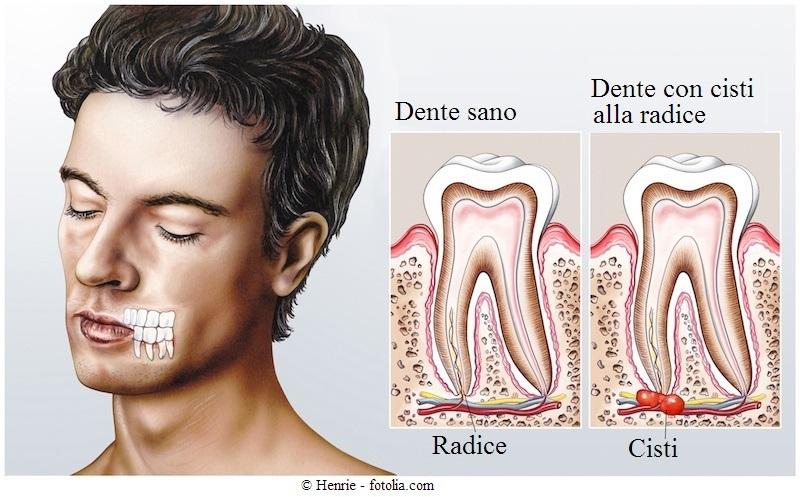 dente-radice-cisti