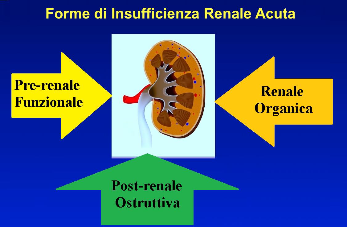 insufficienza renale pre-renale, organica, post renale