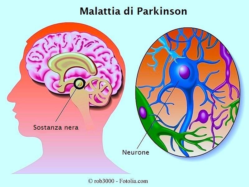 malattia-parkinson