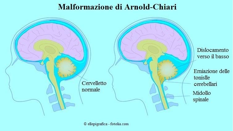 sindrome-Arnold-Chiari