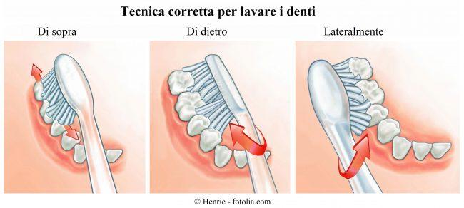 tecnica-lavare-denti