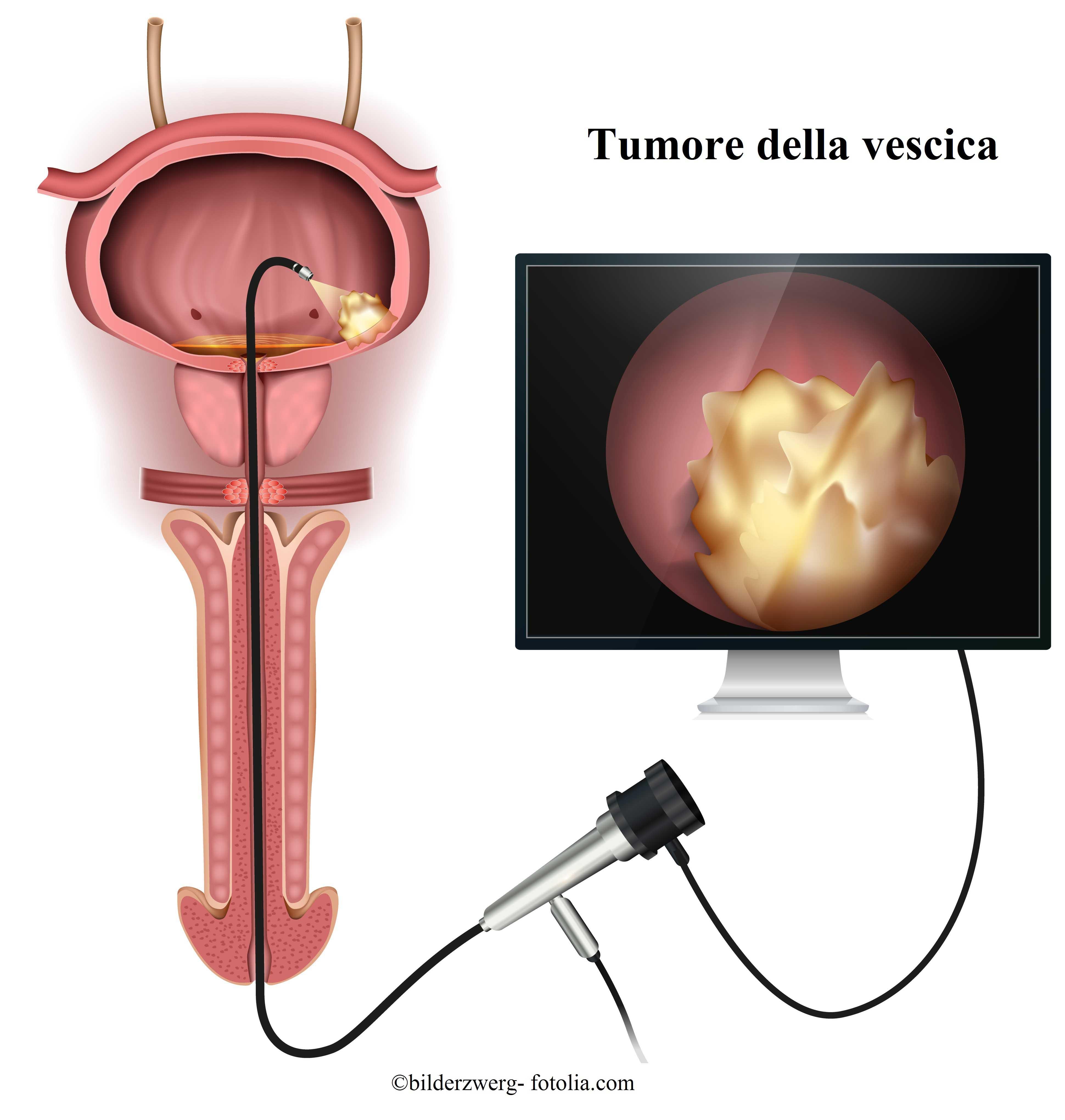 tumore-vescica-endoscopia