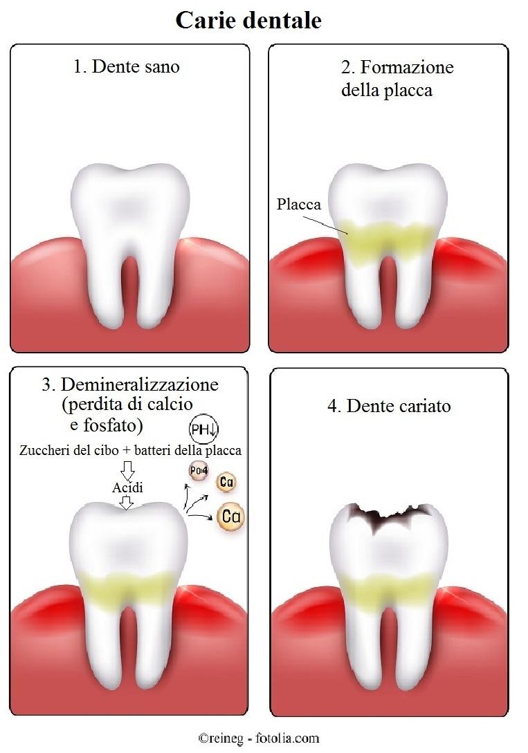 Carie dentale