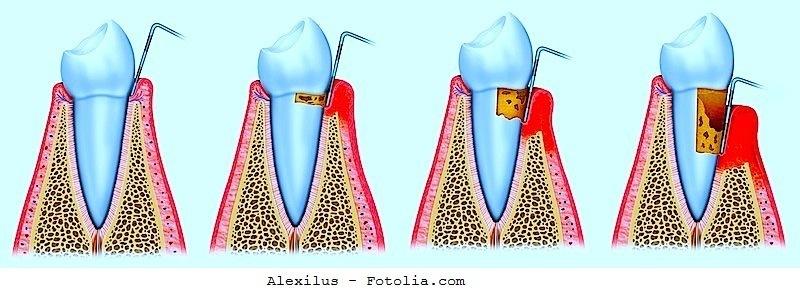 Cura per la parodontite