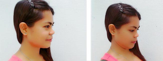 ejercicio de retracción del cuello