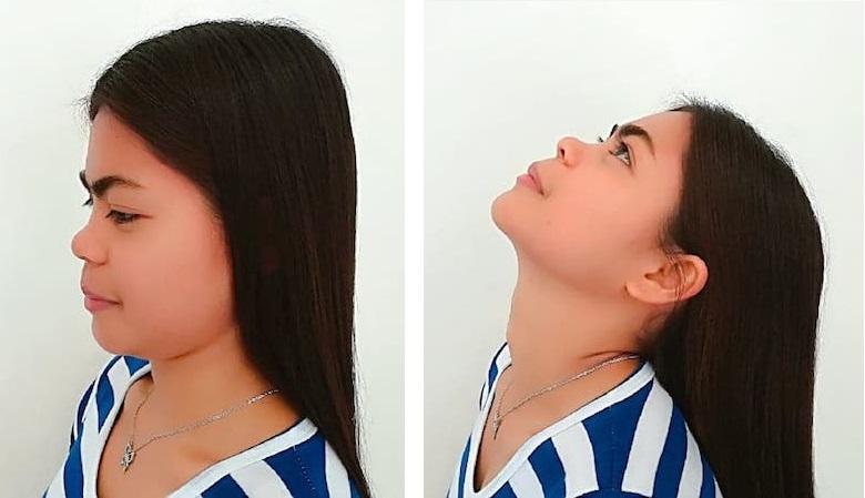 ejercicios mckenzie para el cuello