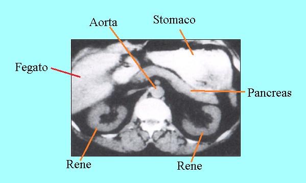 pancreatite, calcificazioni, dilatazione dotto