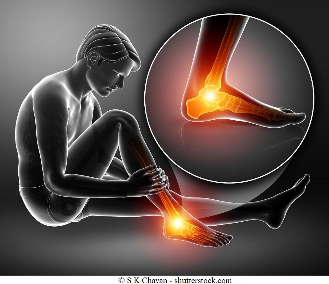 Dolore alla caviglia