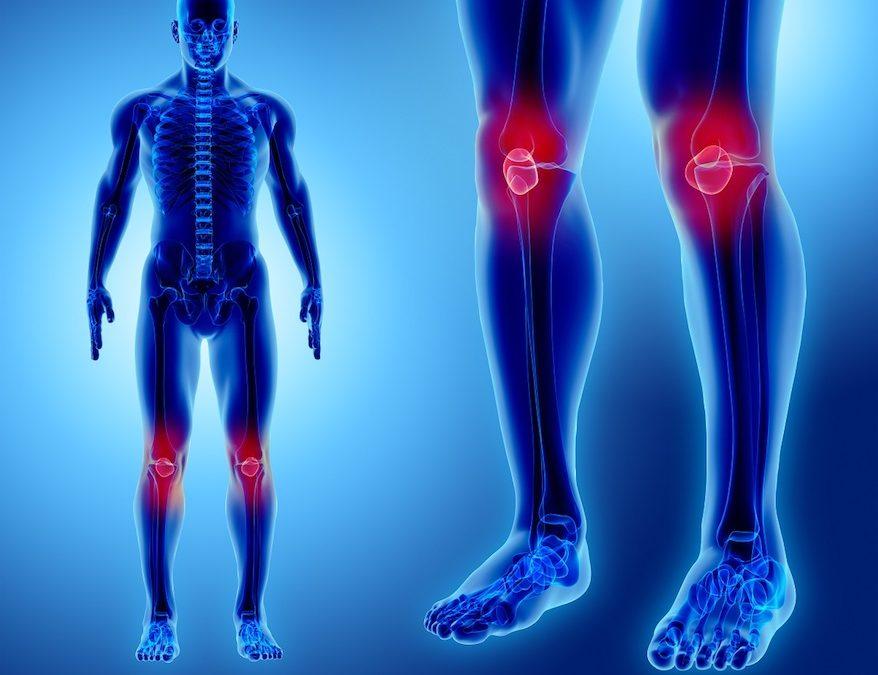 Osteosarcoma al ginocchio: sintomi iniziali e terapia