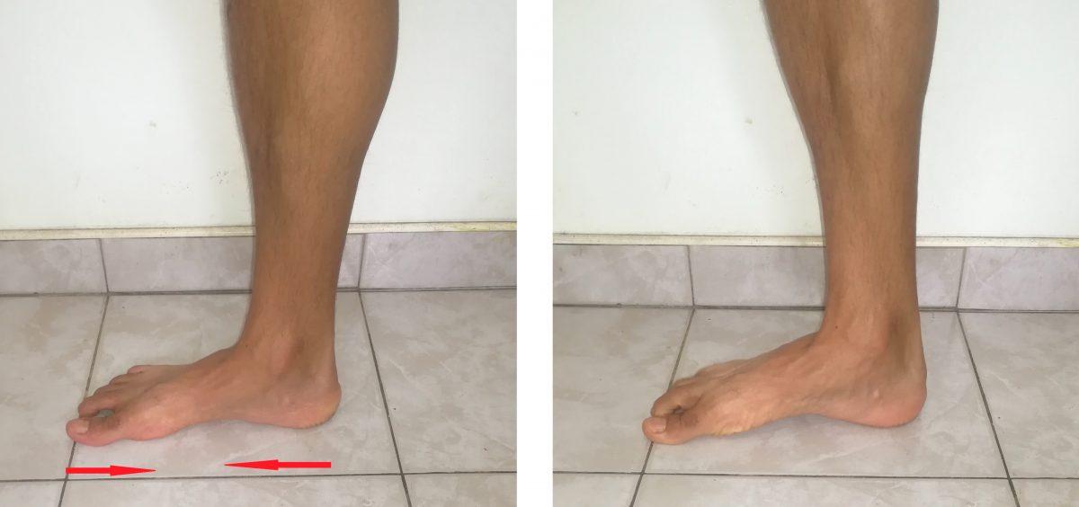 esercizio di accorciamento piede