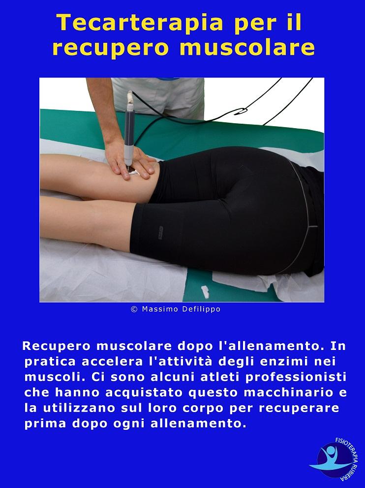 Tecarterapia per recupero muscolare