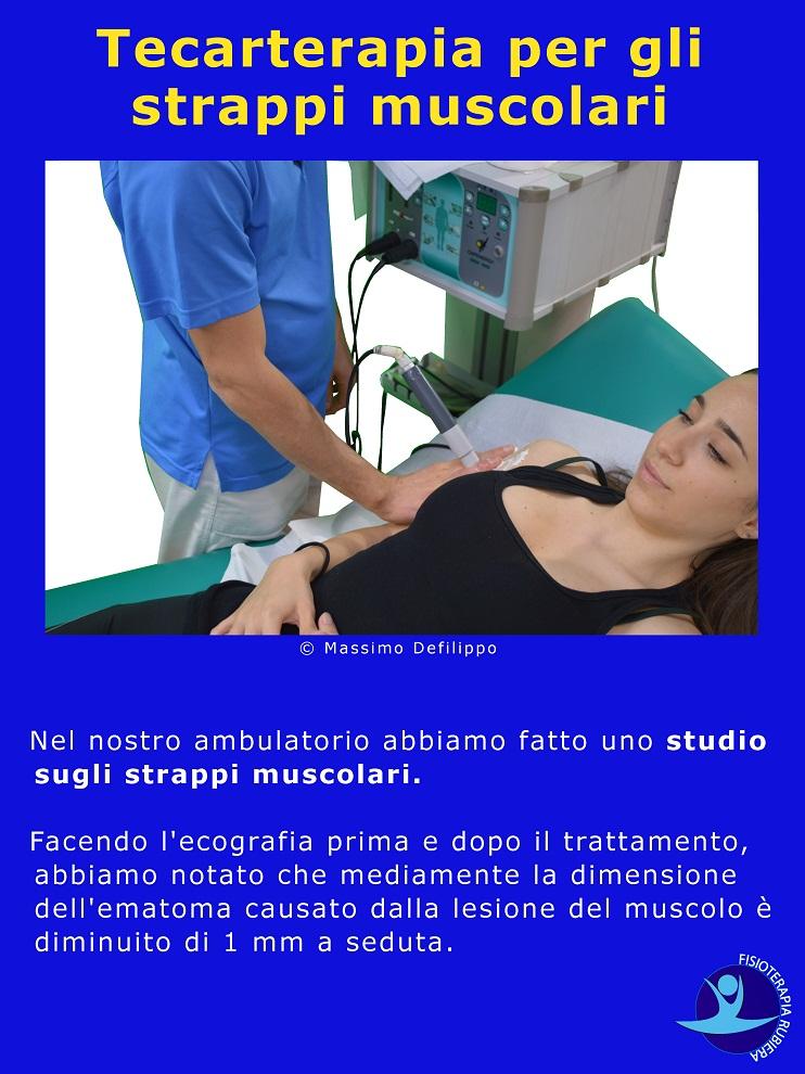 tecarterapia-per-strappi-muscolari