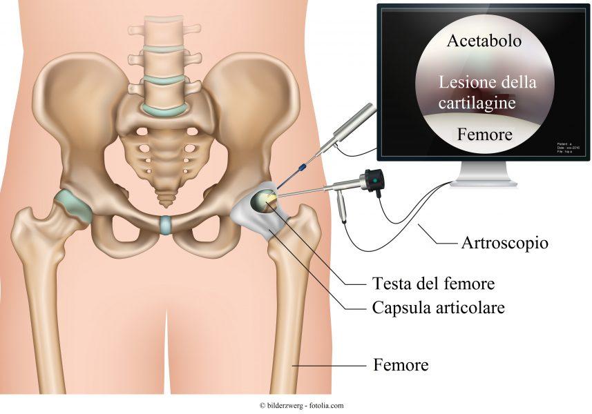 intervento artroscopia anca