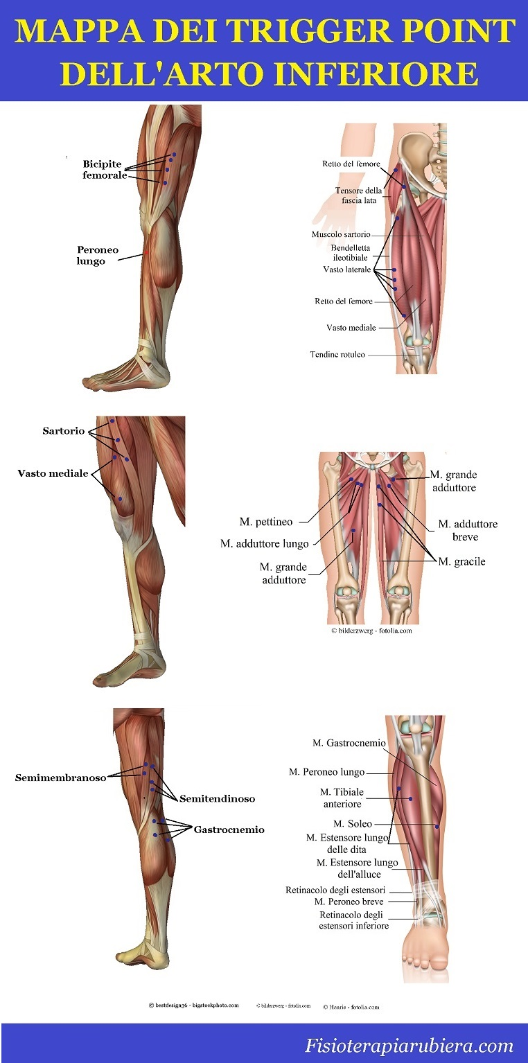 mappa trigger point, muscoli, gambe, coscia