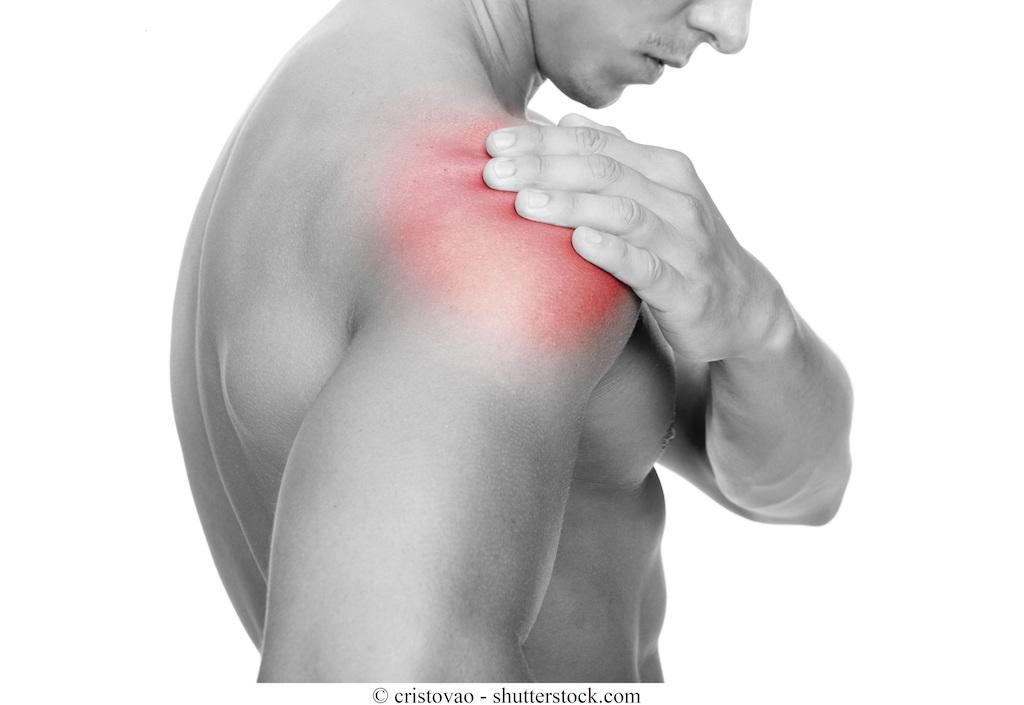 5 Test per la Lesione della Cuffia dei Rotatori della Spalla