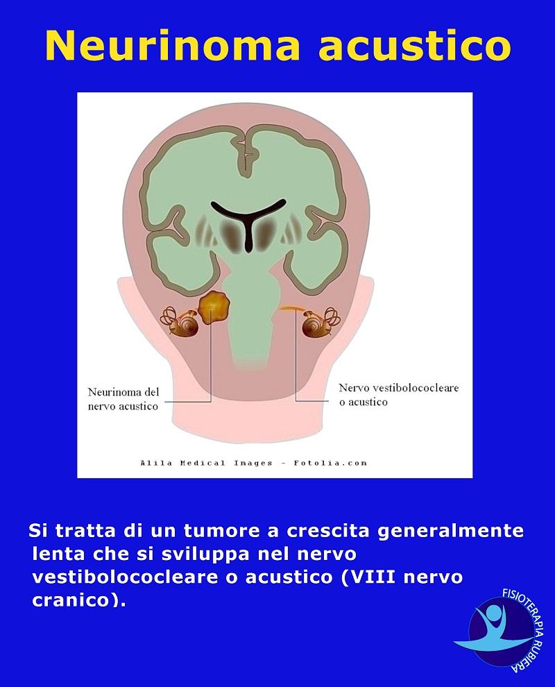 Neurinoma-acustico