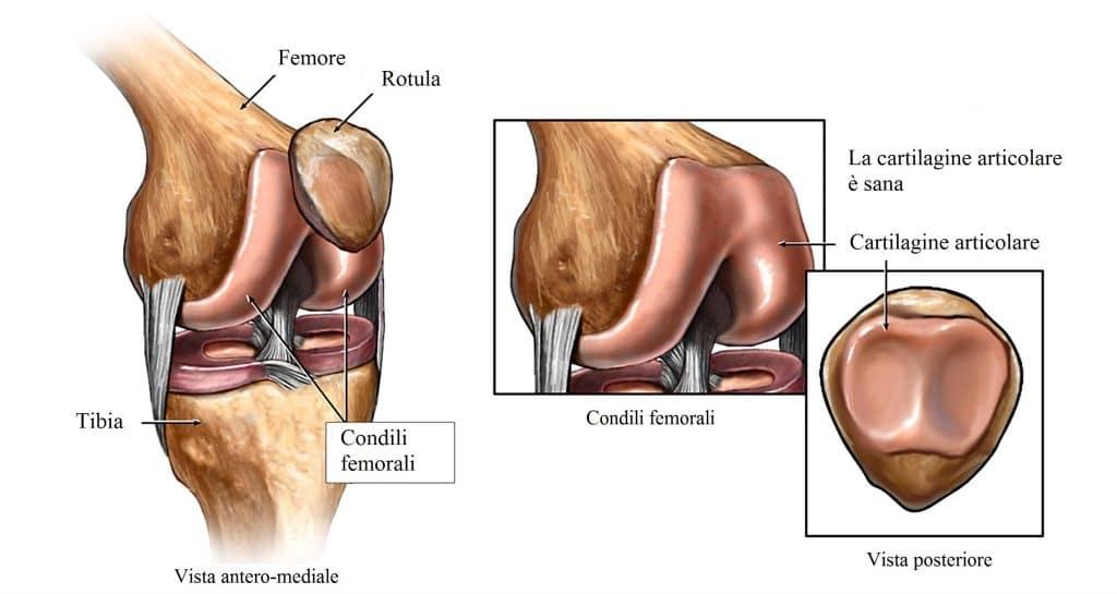 Femore,tibia,rotula