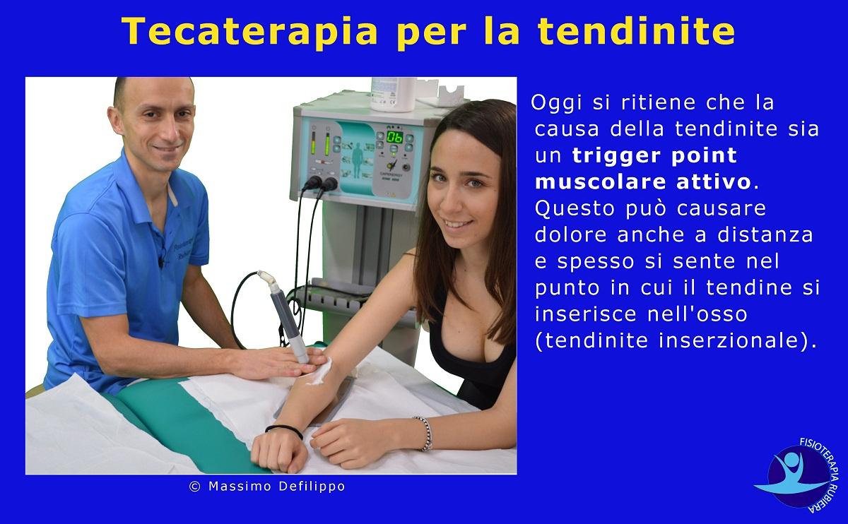 Tecaterapia-per-la-tendinite