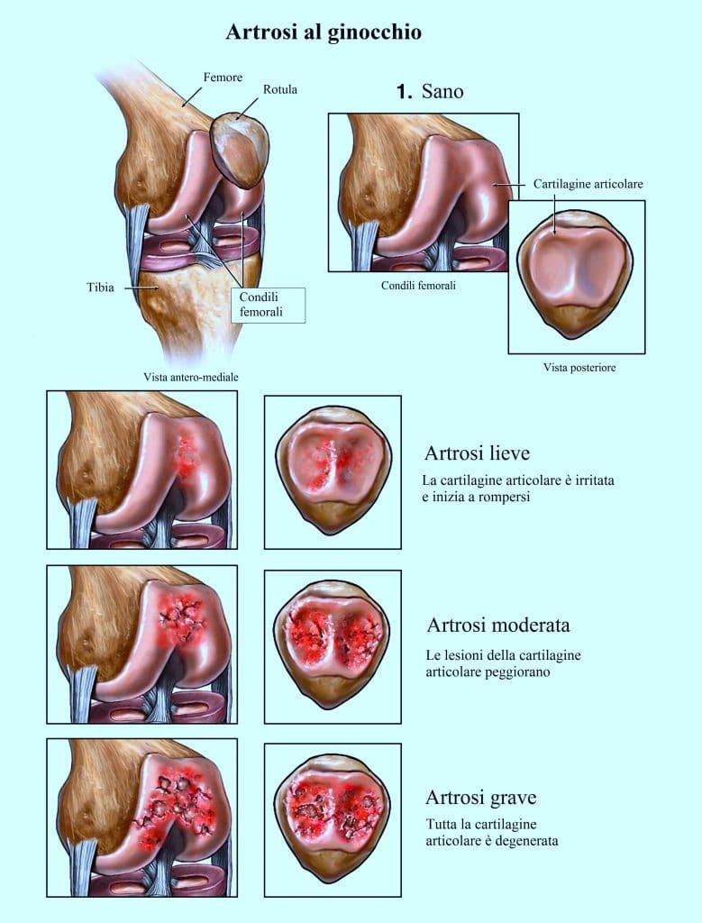 Artrosi al ginocchio,dolore,infiammazione