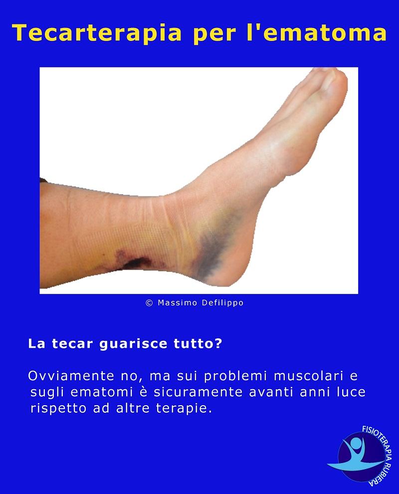 Il ruolo della fisioterapia nell'artrite reumatoide