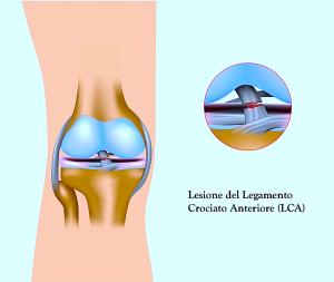 Rottura dei legamenti del ginocchio