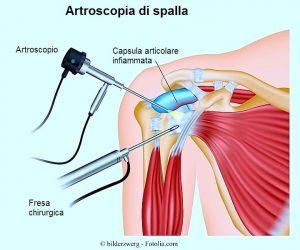 intervento chirurgico,artroscopia,spalla,sovraspinoso,tendine