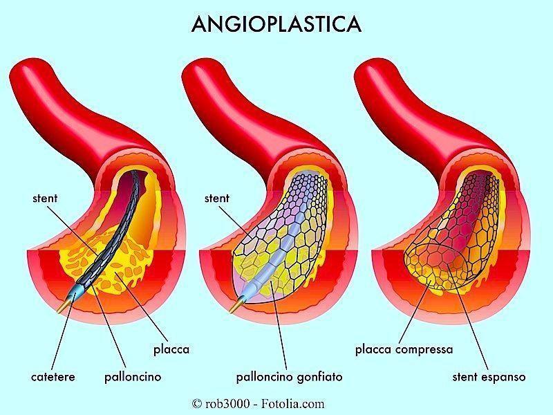 stent,angioplastica coronarica,palloncino