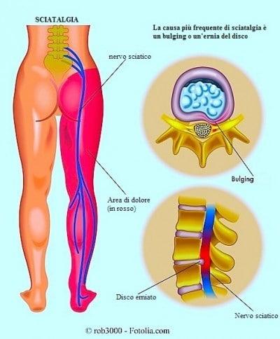 Infiammazione del nervo sciatico
