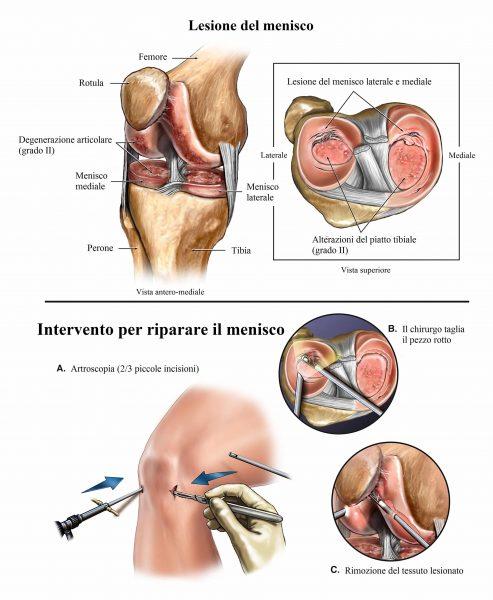 Intervento chirurgico al menisco,rottura,meniscectomia
